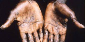 Ruam kulit telapak tangan yang tertular virus cacar monyet. (Foto: WHO)
