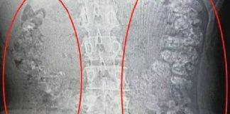 Hasil CT Scan yang menunjukkan gelembung teh susu mutiara yang ditemukan dalam perut gadis di Cina. (Foto: Shaoxing)